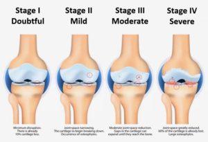 Utvikling av artrose